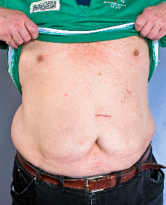 Al's Scars after five weeks